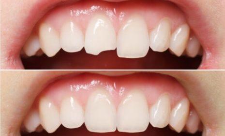 Złamałeś albo wypadł Ci ząb ? Wezwij pogotowie stomatologiczne !