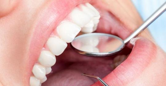 Stan zębów i tkanek przyzębia zdradzą na co chorujesz