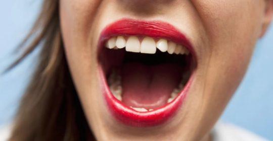 Poparzone podniebienie – przyczyny, objawy, leczenie