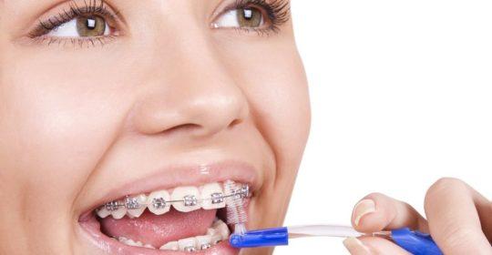 Jak dbać o zęby i o aparat ortodontyczny?