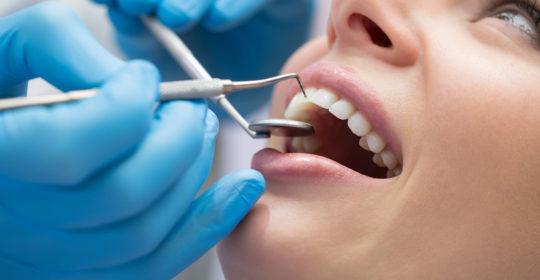 Kiretaż może uratować twoje zęby