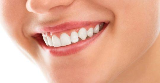 Niepróchnicowe ubytki zębowe
