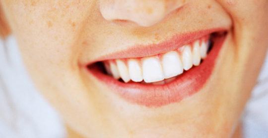 Witaminy na zdrowe zęby i dziąsła