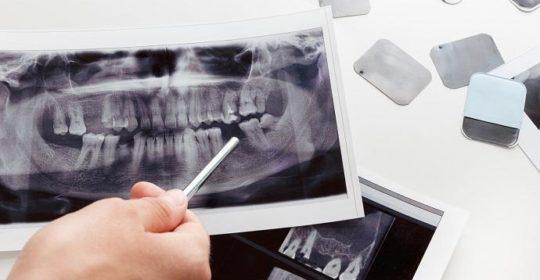 Co to jest pantomogram zębów i jak przebiega ?