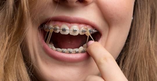 Elastyczne wyciągi ortodontyczne