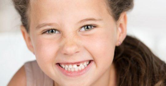 Urazy zębów u dzieci i młodzieży