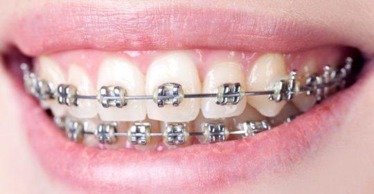 Leczenie stomatologiczne gdy się nosi aparat na zęby