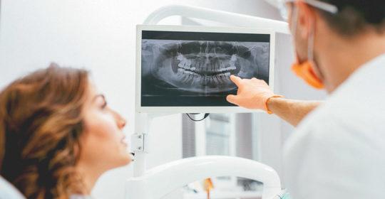 Rodzaje zdjęć rentgenowskich (RTG) zębów