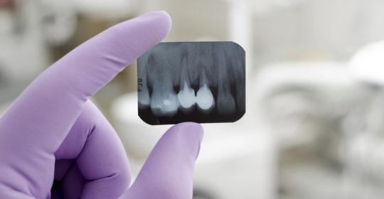 Usuwanie złamanego narzędzia z zęba po leczeniu kanałowym