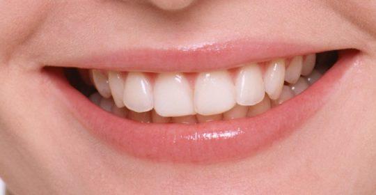 Włókno szklane w stomatologii